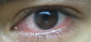 mata saya.jpg